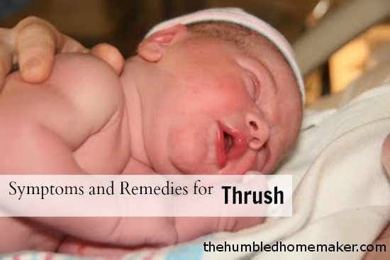 Natural Remedies For Yeast In Babies
