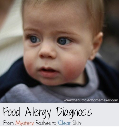 Food Allergy Diagnosis From Mystery Rashes To Clear Skin