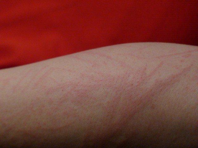 Redmond Clay can help heal skin rashes