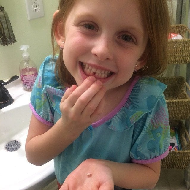 losing first tooth