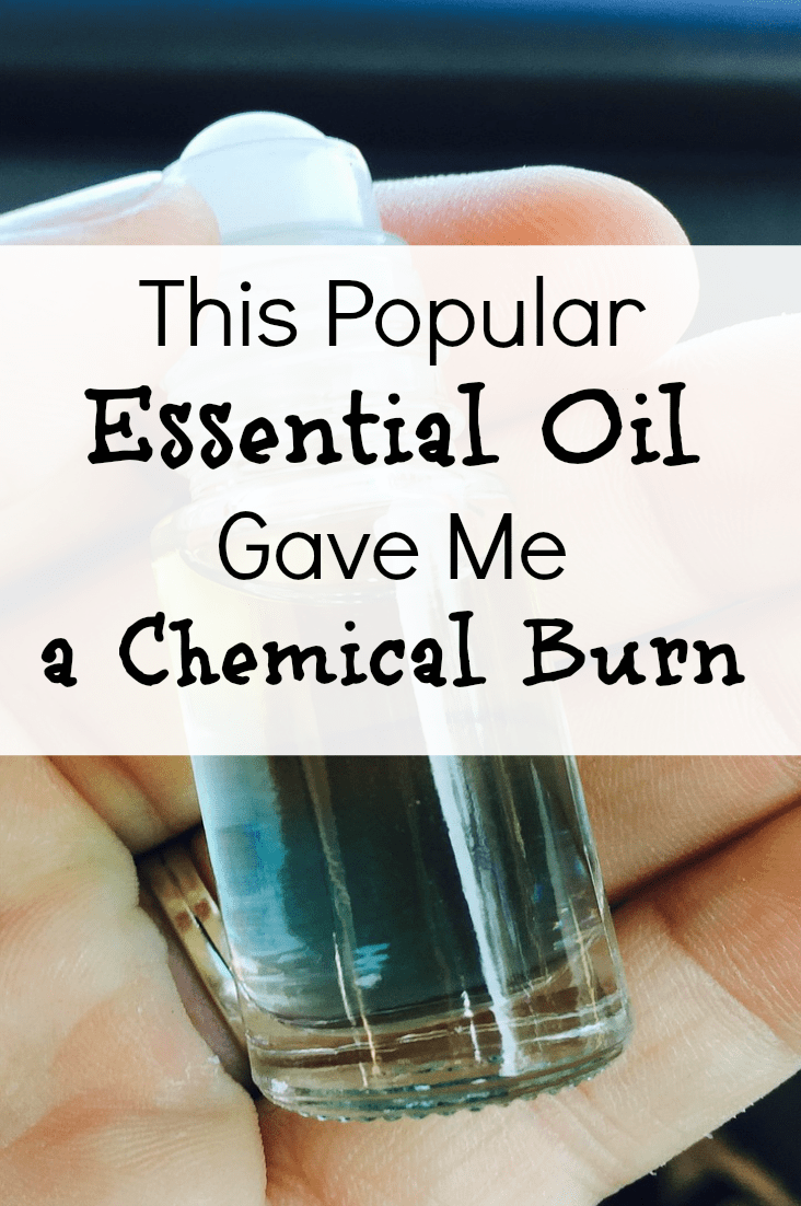 I would have never guessed that this popular essential oil would give me a chemical burn! But it did, and I might now be scarred forever. If only I had better educated myself before using it!