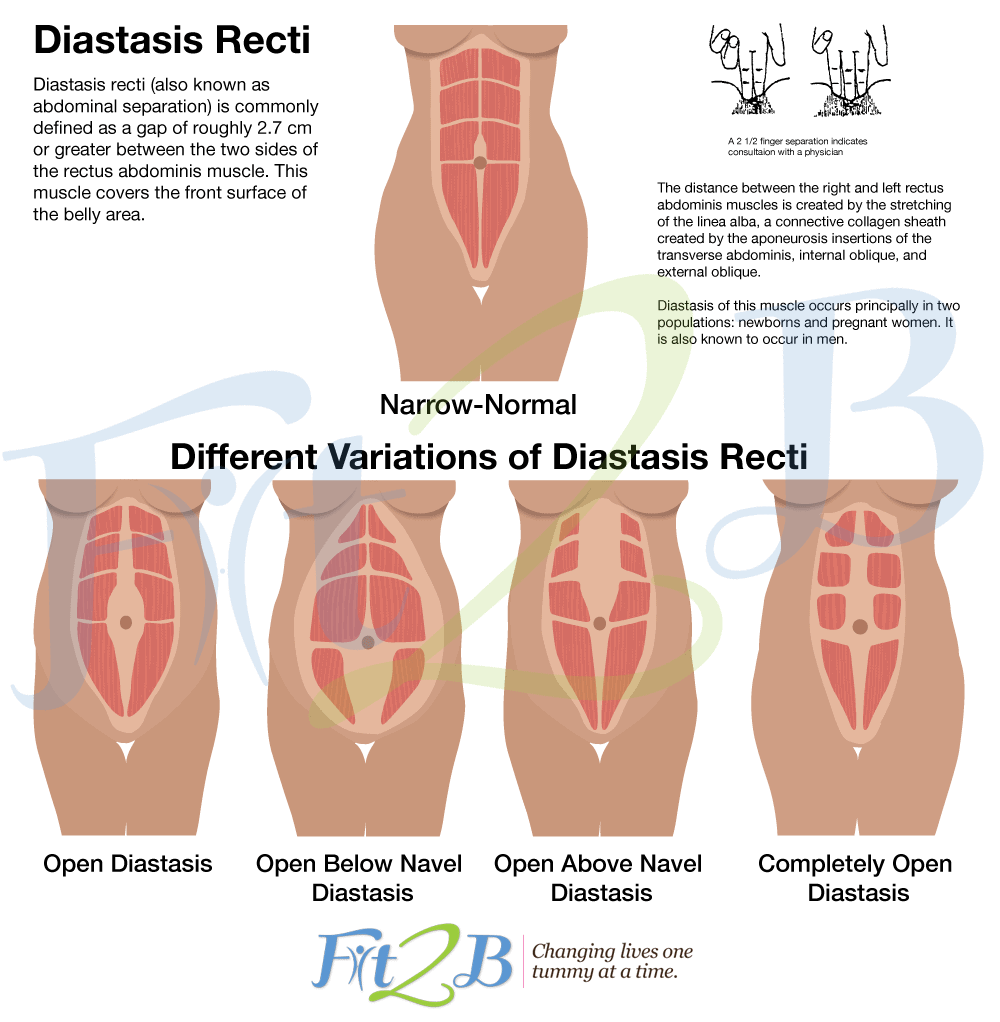 diasthesis or hernia Abdominal bulge not always a hernia s efficacy in curing diastasis recti postpartum, a condition often referred to as mommy pooch.