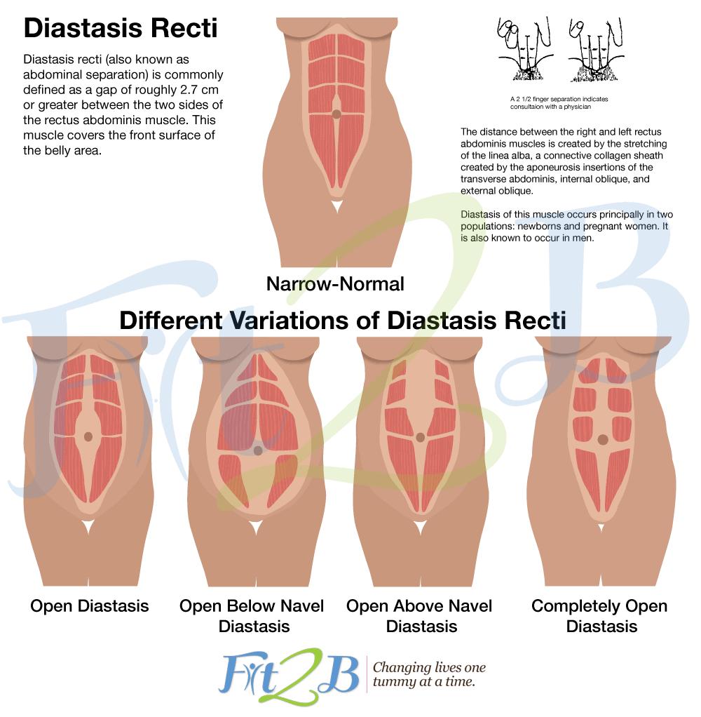 Diastasis Recti Exercise Programs: Moms Will Love These!